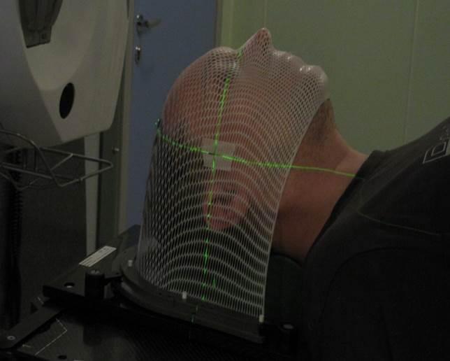 Фиксация пациента термопластической маской
