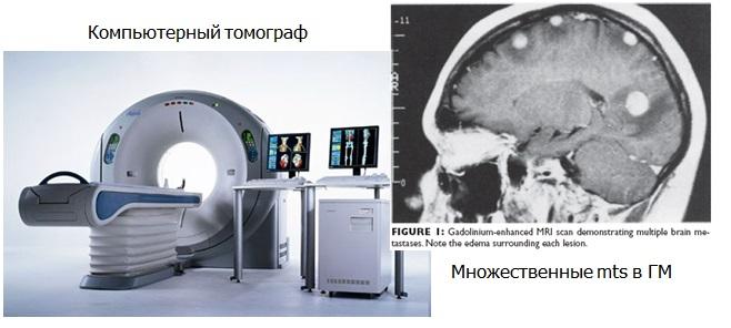 Компьютерная томография и магниторезонансная томография