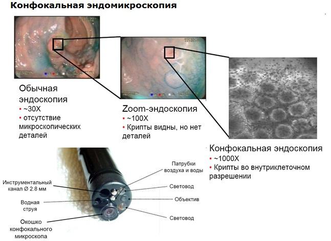 Конфокальная эндомикроскопия