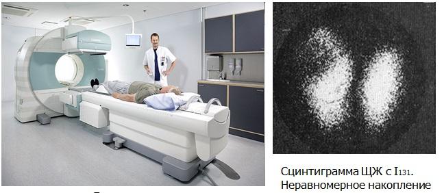 Радиоизотопные исследования и диагностика рака