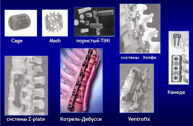 Различные имплантационные системы, обеспечивающие первичную стабильность  в операциях межтелового спондилодеза