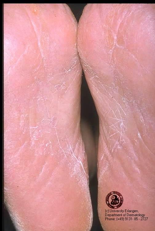 Грибок на икрах ног человека