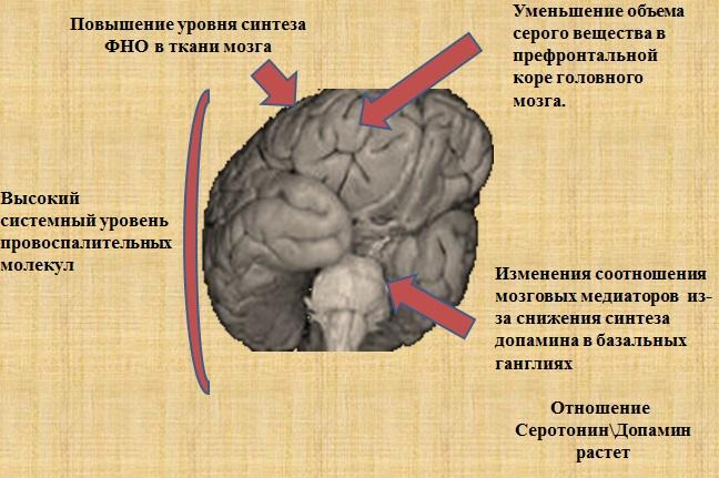 Центральная слабость у ракового пациента.