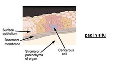 онкогенез