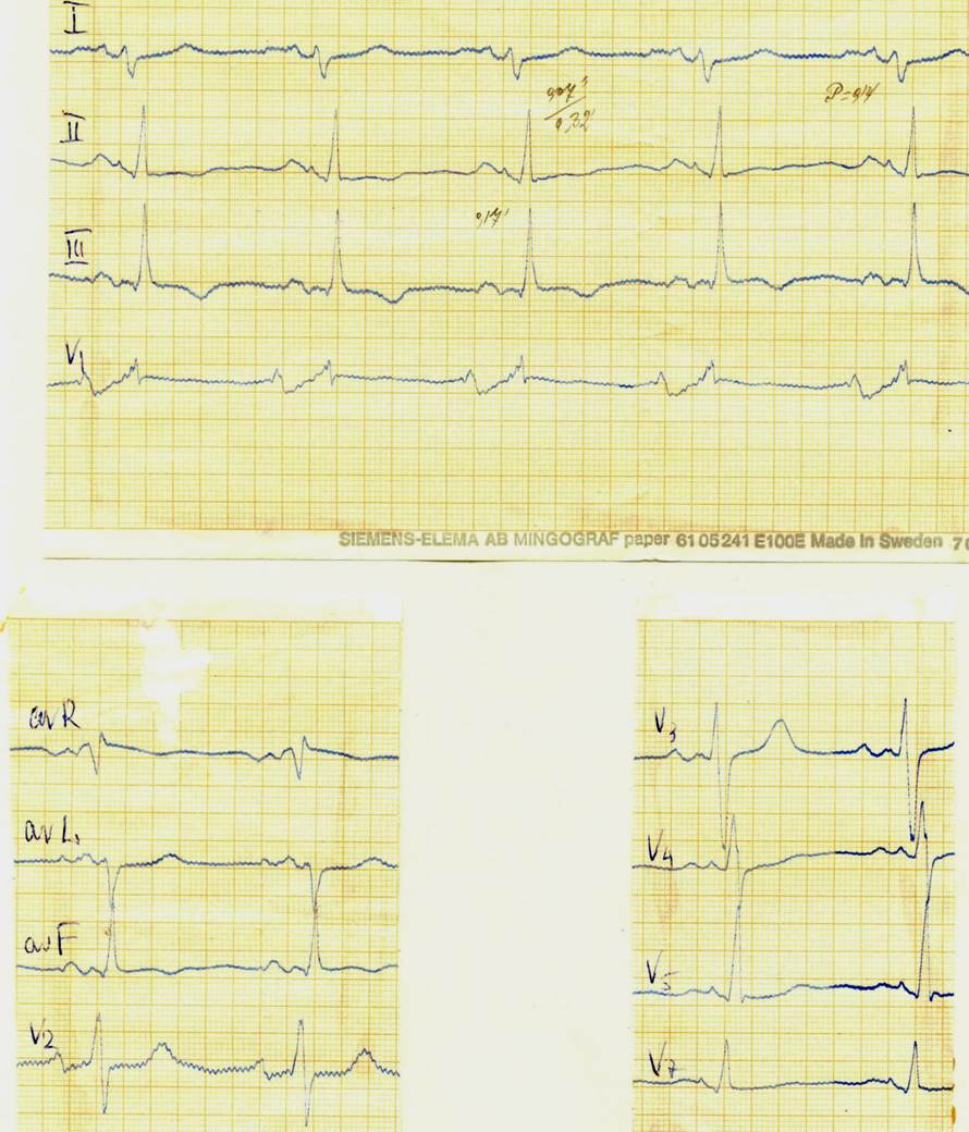 ЭКГ при митральном стенозе: гипретрофия ЛП и ПЖ